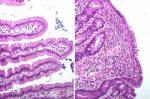 Test rapid pentru boala celiacă