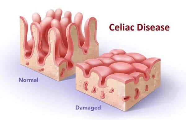 boala celiacă giardiază medicamentos caseros para oxiuros