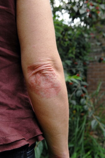 ducray dermatita seboreica poze smechere