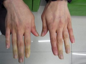 raynauds in sjögrens syndrome